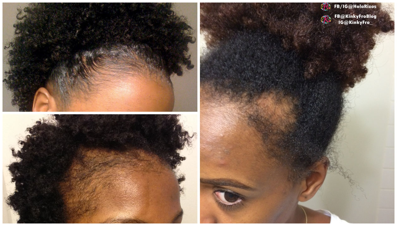 5 Ways to Treat, Regrow and Prevent Damage to Your Edges.